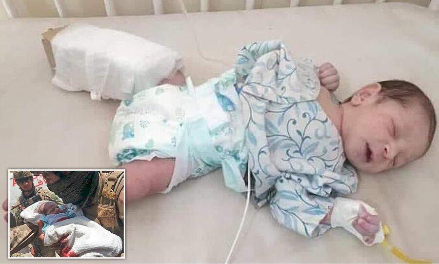 قتل عام داعش در کابل ، نوزادی که دو گلوله خورد و زنده ماند