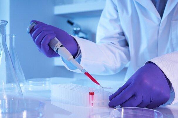 رویداد ایده پردازی ساخت نانوحسگرهای زیستی برگزار می گردد